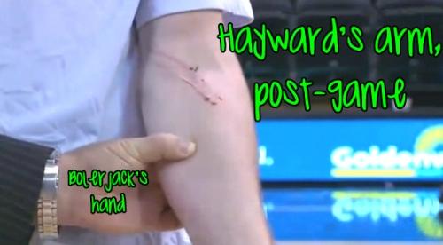 hayward arm
